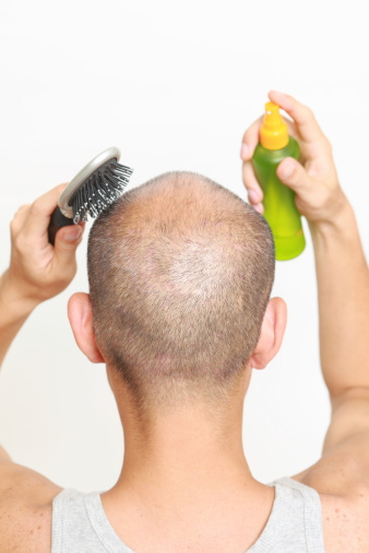 natural hair loss treatments